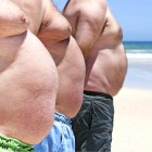 L'obesità uccide ogni anno 4 milioni di persone nel mondo